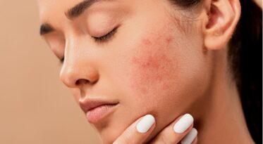 Trądzik to częsty powód wizyty u dermatologa